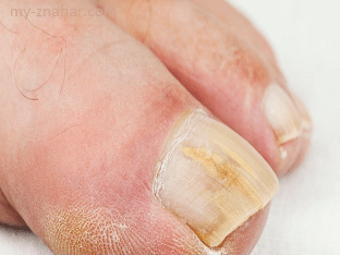 Какие народные средства помогут от грибка на ногах (ногтях)