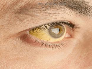 Какие симптомы заболеваний печени