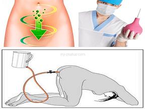 Клизмы для очищения кишечника в домашних условиях