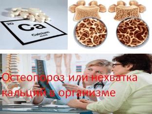 Остеопороз или нехватка кальций в организме