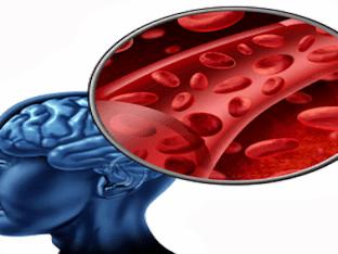 Как снять спазмы сосудов в головном мозге