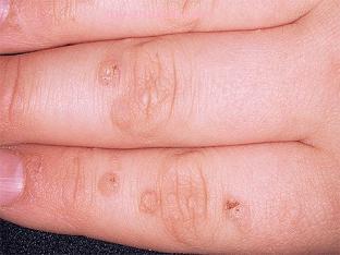 Как вывести бородавку на пальце руки