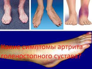 Какие симптомы артрита голеностопного сустава