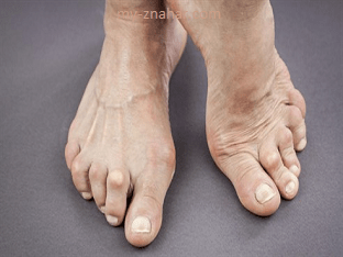 Какие признаки деформации суставов стопы при артрозе