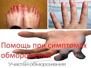 Помощь при симптомах обморожения