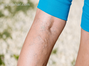 Чем лечить тромбофлебит
