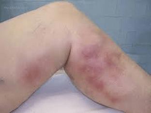 Почему может возникнуть тромбофлебит, как лечить