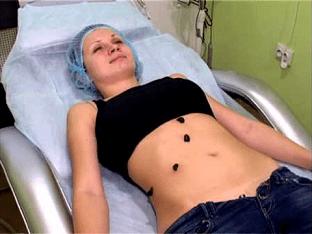 При каких заболеваниях помогает гирудотерапия