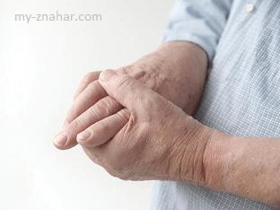 Что делать при судорогах в пальцах рук