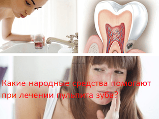 Какие народные средства помогают при лечении пульпита зуба