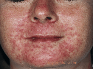 Народные методы при лечении себорейного дерматита