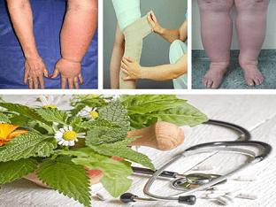 Лимфостаз, что делать , чем лечить