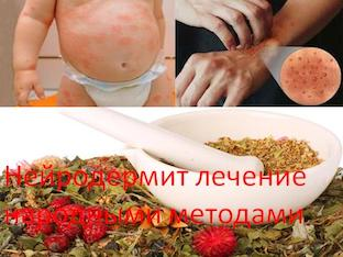 Нейродермит лечение народными методами