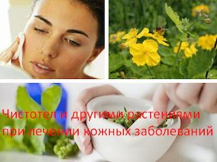Чистотел и другие растения при лечении кожных заболеваний