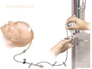 Как измеряют внутричерепное давление