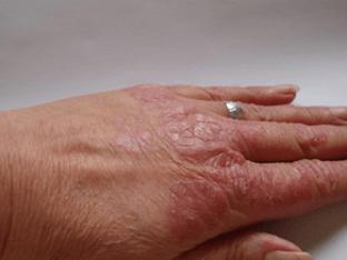 Как лечить псориаз бабушкиными рецептами