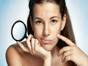 За какие органы отвечают прыщи на лице, как их лечить?