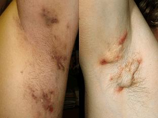 Гидраденит: как лечить, причины, мази, антибиотики?