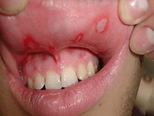 Стоматит у взрослых – разновидности, симптомы и лечение заболевания