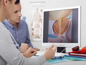Аденома предстательной железы: симптомы, признаки, последствия