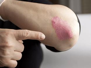 Методы лечения псориаза в домашних условиях