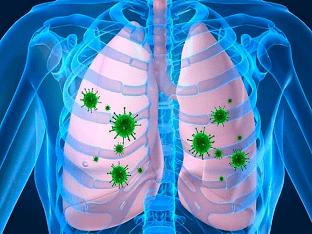 Лечение при заражении клебсиеллой пневмония