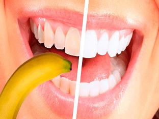Лучшие домашние способы отбеливания зубов