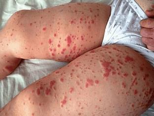 Почему появляется геморрагическая сыпь и как ее лечат?