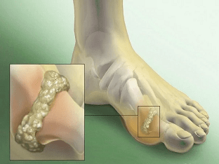 Подагрический артрит: симптомы, причины, как лечить?