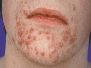 Подкожный клещ на лице - что это и как лечить?