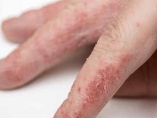 Псориаз на руках: симптомы и лечение. Чем и как лечить?