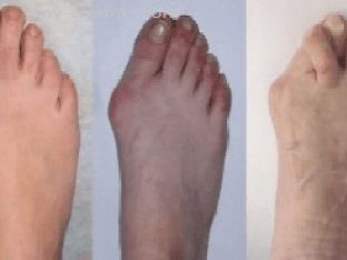 Что делать при артрозе большого пальца ноги?