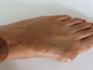 Что делать при артрозе плюсневого сустава?