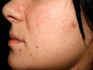 Как бороться с прыщами (демодекозом, акне и угрями)?