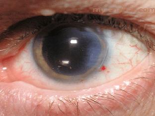 Как лечить катаракту народными методами?