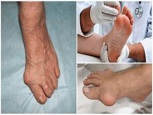 Как лечить подагру: современные методы и способы?
