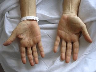 Пути передачи и лечение бытового сифилиса