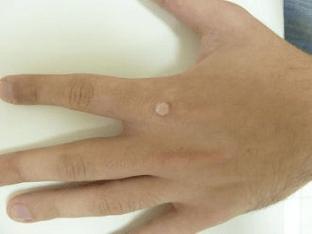 Бородавки на руках: причины и методы устранения