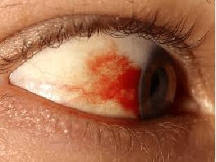 Опасность кровоизлияний в глаз, причины возникновения, лечение и профилактика