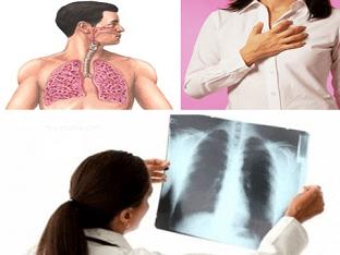 Что делать при фиброзе легких