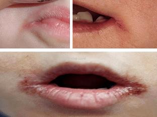 Что делать при трещинах в уголках рта