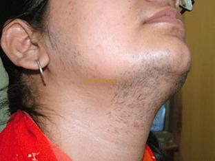 Как бороться с (гирсутизмом) повышенной волосатостью у женщины