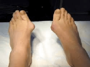 Почему выступает косточка на ноге и что с этим делать