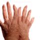Что делать при ревматизме, чем лечить?