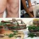 Что делать при синовите коленного сустава, чем лечить?