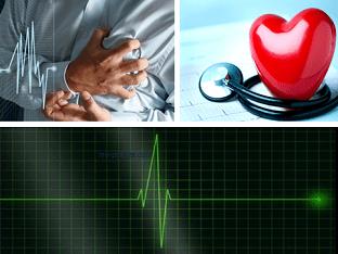 Что за болезнь аритмия, ее причины и как лечить