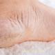 Как избавиться от сухих пяток и потливых ног?