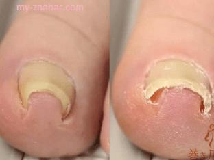Как избавиться от вросших ногтей