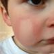 Как лечить аллергию на холод?