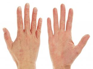 Что делать, если сухая кожа на руках